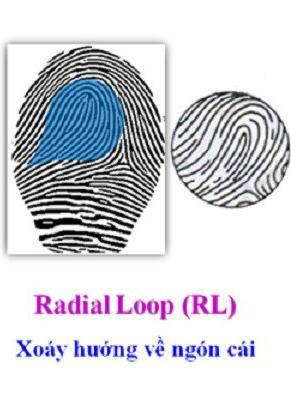 Chủng sinh trắc vân tay Loop ( Loop Radial )