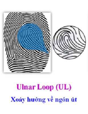 Chủng sinh trắc vân tay Loop ( Loop Ulnar )