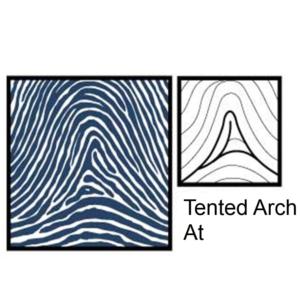 Chủng sinh trắc vân tay Arch ( Tented Arch )